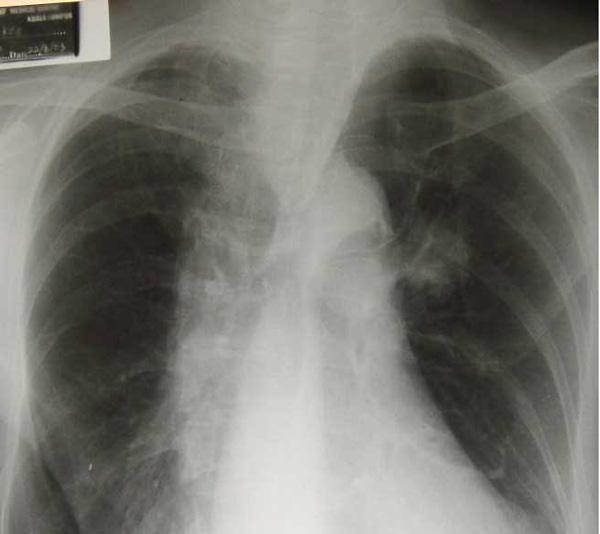 Lung-KL118