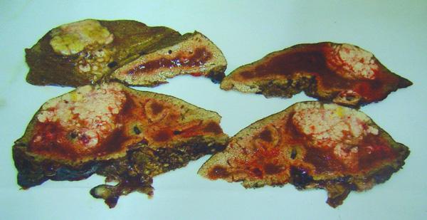 liver-2pontianak-specimen-